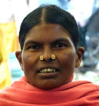 <span style='color:red;'>Unreached:  </span>Halba of India  (728,000)